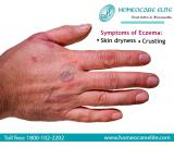 Protect Skin From Eczema Through Homeopathy Treatment in Mangalore