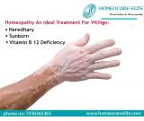 Control Vitiligo Problems with Homeopathy in Visakhapatnam