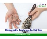 Homeopathy Doctors for Hair Loss in Khammam