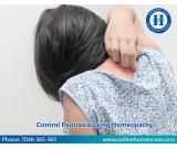 Control All Your Psoriasis Problems Through Homeopathic Treatment In Visakhapatnam