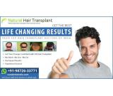 Best hair transplant in Gwalior | know hair transplant cost & clinic
