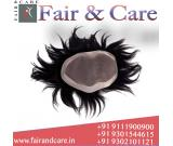 Hair Wigs, Hair Extensions, Hair Patch, cancer patient wigs