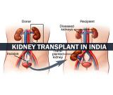 Donate your kidney legally for the sum of $450,000 USD