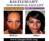 KAS Fluid Lift Non-Surgical Facelift in Delhi