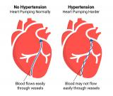 Hypertension Treatment in Ghaziabad